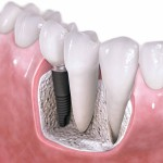 How to Find a Dentist for Dental implants in Louisville