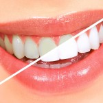 Conditions Treated by Your Dentist in Edison