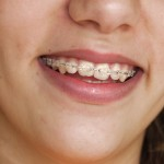 The Advantages of Teen Invisalign Braces