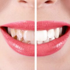 Reasons a Patient May Need Teeth Whitening in Beaumont, TX