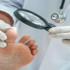 Seeking Professional Ingrown Toenails Treatment in Kenosha WI