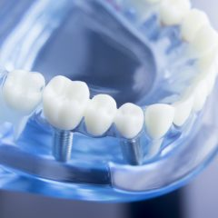 3 Questions to Ask When Choosing an Oral Surgeon for Dental Implants