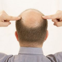 The Advantages of Undergoing a Hair Transplant in NJ